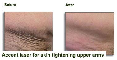 Accent-for-skin-tightening