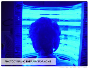 Photodynamic-therapy-for-Acne