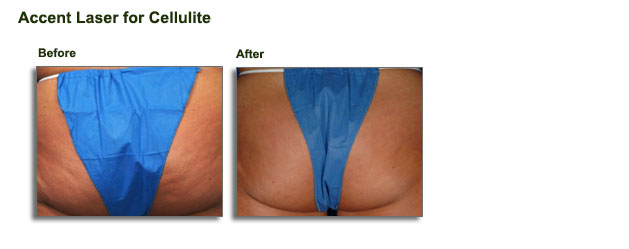 accent-laser-for-cellulite