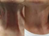 Botox For Lower Neck