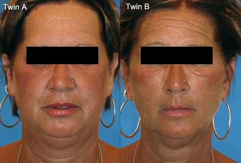Danger Of Botox Facial Atrophy