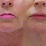 Botox For DAO Muscle, Juvederm Upper Lips