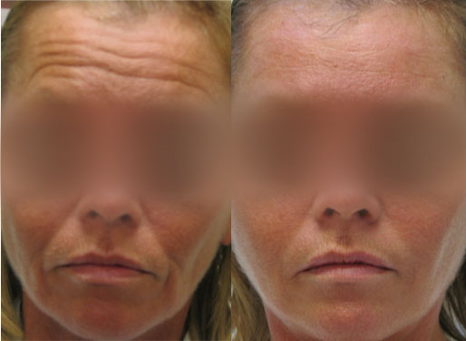 Botox Forehead Lines, Juvederm Smile Lines