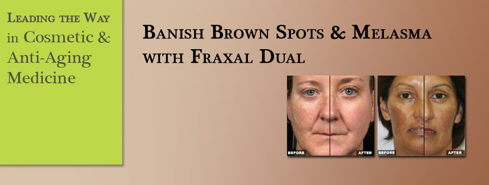 Banish-Brown-Spots