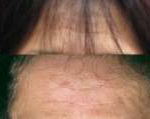 Selphyl Forehead Lines