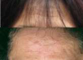 forehead lines before and after Selphyl