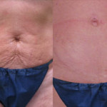 Lazer Room Patient - Body after Baby - skin tightening and roller therapy